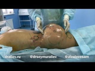 Айза у хирурга