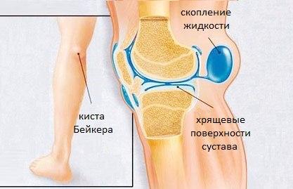 Киста беккера под коленом как лечить в