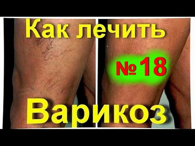Варикоз варикозное расширение вен народное лечение средство от варикоза № 18 лечениеварикоза