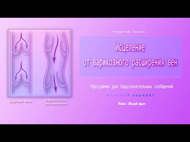 Исцеление от варикозного расширения вен (для женщин). Программа для подсознательных сообщений.