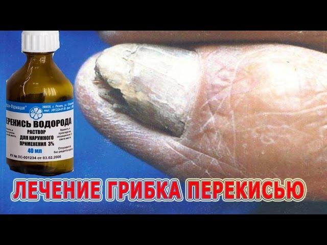 Лечение грибка между пальцами ног перекисью водорода