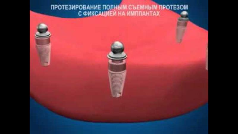 Съемное протезирование на имплантантах