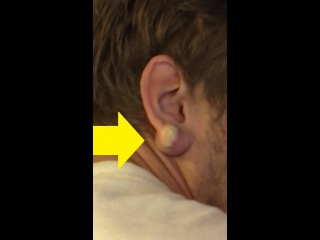 EXPLODING A 2 YEAR OLD EAR CYST
