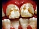 Зубы и фтор (Fluoride: Poison On Tap).