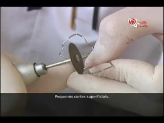 Prietos hygienic pendulum.зуботехническая работа. ортодонтия.