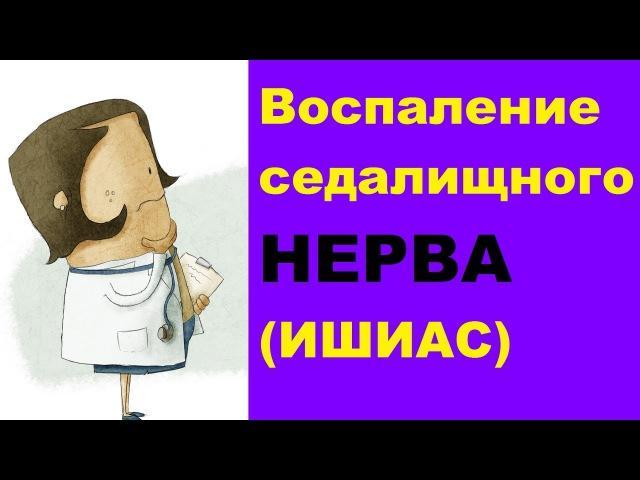 Воспаление седалищного нерва (ишиас) симптомы и лечение