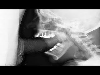 Секс рентгене