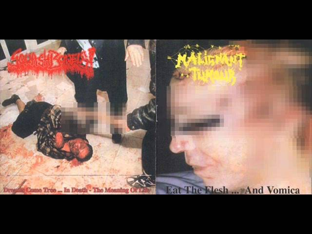 Malignant Tumour- ( FULL ) Squash-Bowels-Split-CD