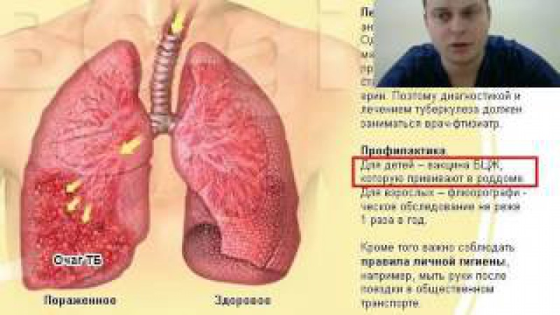 2017 02 09 Догоняющая иммунизация в педиатрии Видеопрезентация Педиатр Бутрий СА