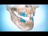Регенерация Новых зубов (нейронастрой)
