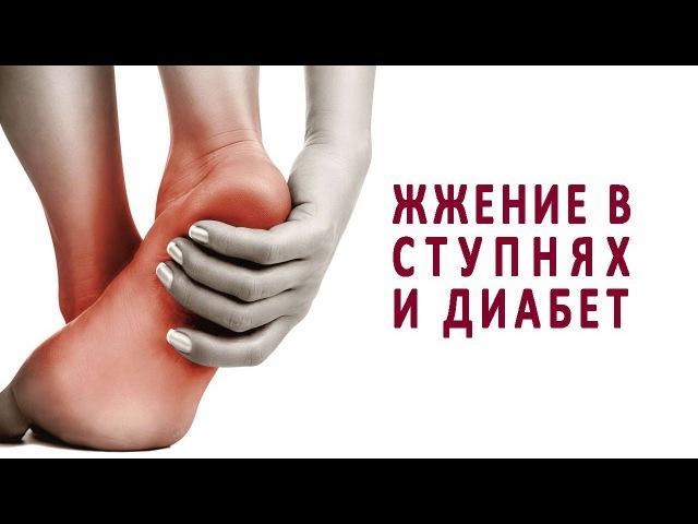 Жжение в ступнях при сахарном диабете