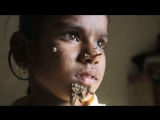 Девочка-дерево из Бангладеша.