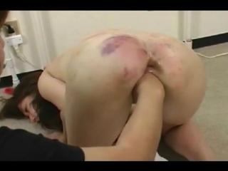 anal fisting vk