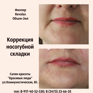 салон красоты в стерлитамаке по увеличению губ