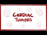 Cardiac tumors (Myxoma, Rhabdomyoma) - causes, symptoms &amp pathology
