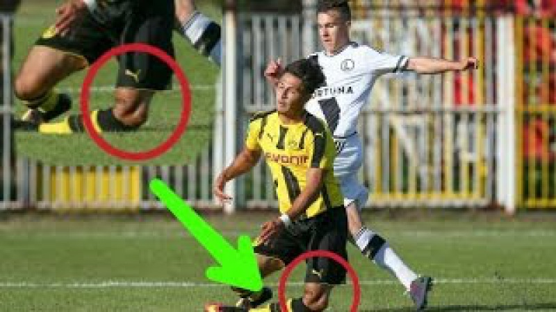 Mengerikan! Pemain Muda Dortmund, Dario Scuderi, Alami Patah Kaki