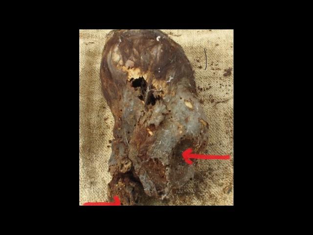 Astonishing Newborn Baby Elongated Skull Of Paracas Peru