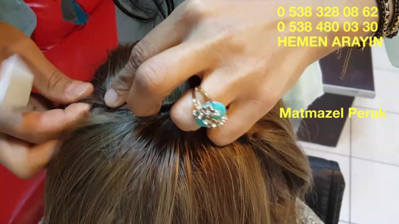 Saç Yatıkları için tepelik tepe protez saç Ankara Matmazel Peruk'da