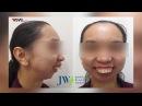Cắt 4 đoạn hàm chỉnh khiếm khuyết gương mặt nặng lần đầu tiên tại Việt Nam