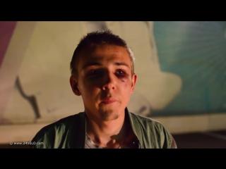 Кавказцы избили русского подростка и сломали ему челюсть