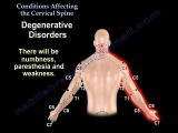 Conditions Affecting the Cervical Spine