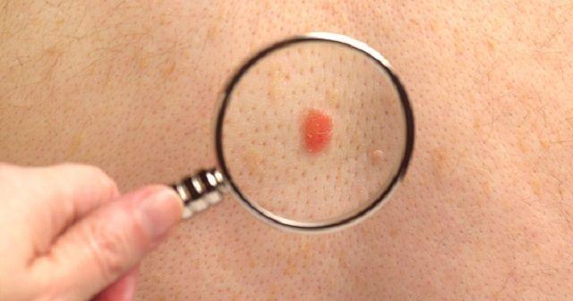 ранние симптомы меланомы