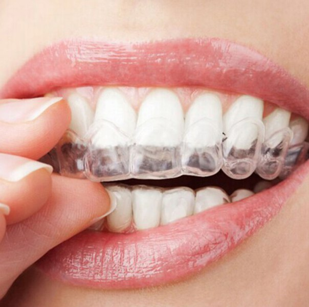 Отбеливание зубов в домашних условиях!  https://ru.aliexpress.com/store/product/Bleaching-Teeth-Tooth-Whitening-Whitener-Care-Oral-Hygiene-With-44-Carbamide-Peroxide/343940_32331866310.html?detailNewVersion=&categoryId=330503