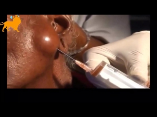 Extracting the biggest cyst