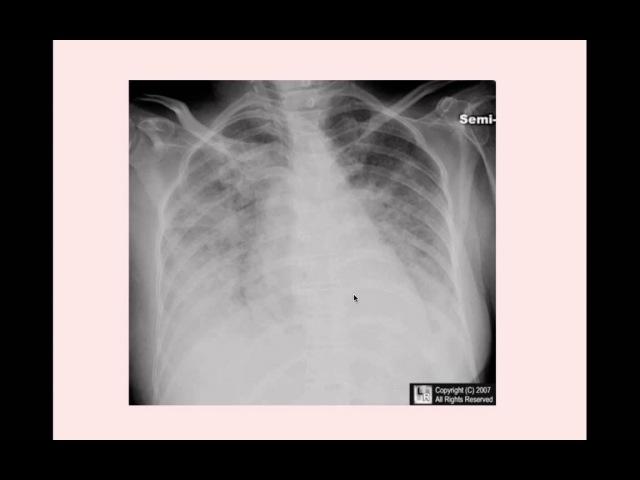 Congestive Heart Failure - CRASH! Medical Review Series