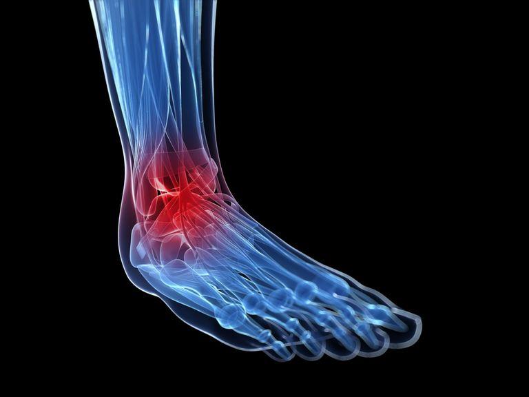 Воспаление после травмы и при травме