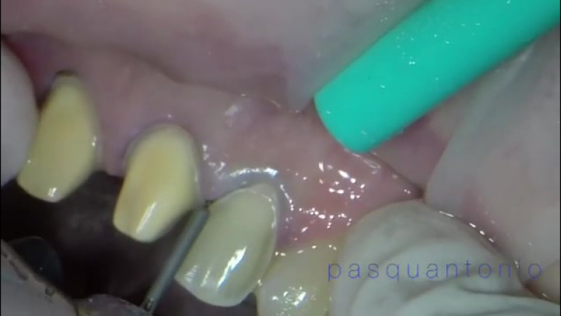 Prosthodontist prosthesis dentistry aestheticd... Рим 22.08.2017