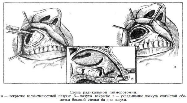 интересующий операция гайморовой пазухи со свищом главной роли