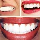 Домашнее отбеливание зубов!