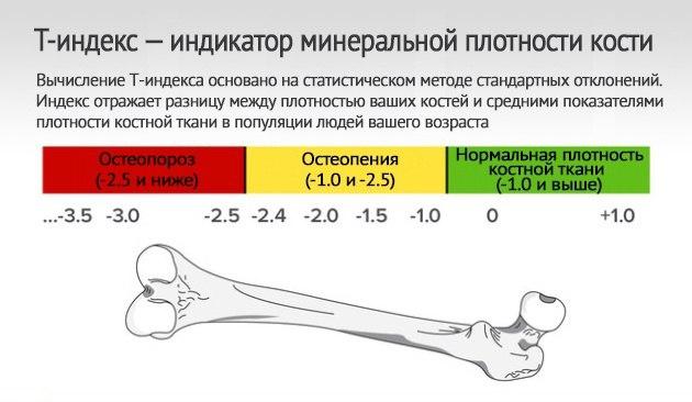 R3Xuj9o3ygQ 3 способа укрепления костей