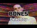 Bones DeadBoy