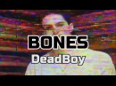 Bones - DeadBoy (RUS SUB)