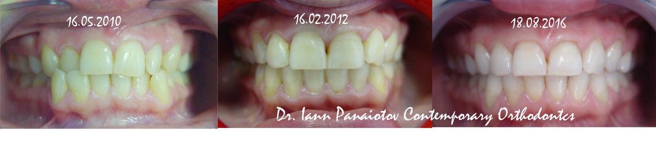 Ортодонтическое лечение до и после  в Москве