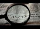 """Roberto Barnai """"Biologischen Konflikte durch die Tumorwachstum starten kann"""