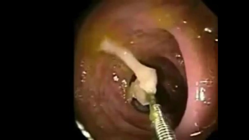 013 Паразиты в кишечнике- глисты,солитеры,аскариды,острицы,гельминты,черви (симптомы,признаки,лечение)