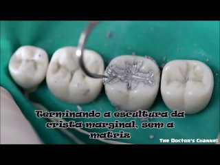 How to restore tooth decay #Tooth #Thedoctorchannel