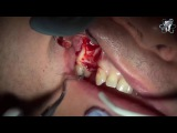 Implants and root canal.Tooth abscess Extraction...كيفية زراعة الأسنان
