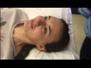Акупунктурный лифтинг лица. Омоложение иглоукалыванием. Иглоукалывание лица. Клиника Тибет