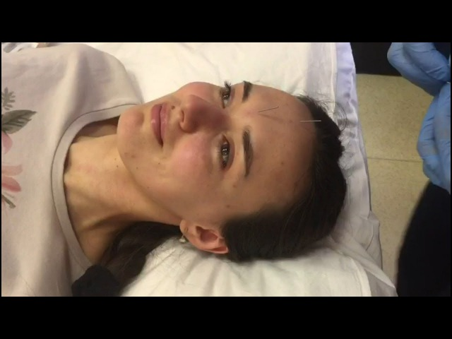 Акупунктурный лифтинг лица в клинике восточной медицины