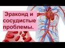 Эраконд и сосудистые проблемы Людмила Амелина