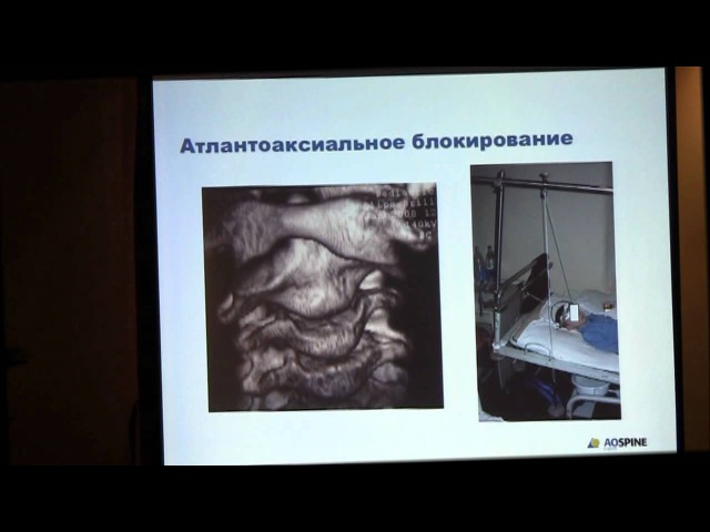 10 Александр Губин Нестабильность шейного отдела позвоночника у детей