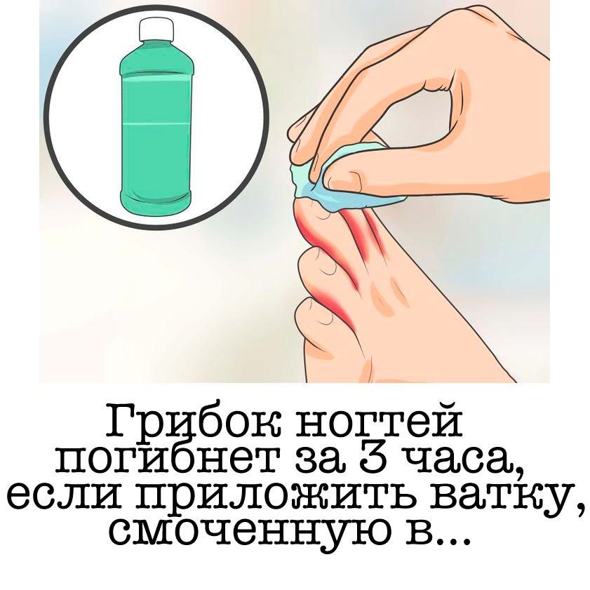 Средства от грибка ногтей на ногах эффективные.