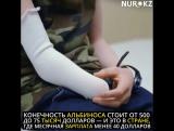 Когда твое тело на вес золота: В Танзании за конечности людей-альбиносов предлагают от 500 до 75 тысяч долларов