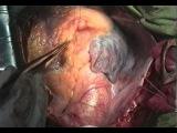 Шунтирование передней межжелудочковой артерии без ИК © Сardiac shunting