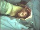 Хирургия средостения © Surgery of mediastinum