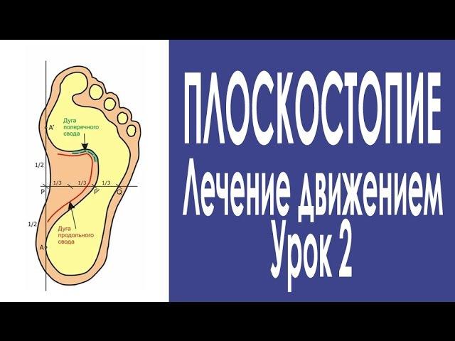 55 Плоскостопие Урок 2 Профилактика и лечение